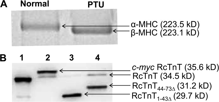 SDS-PAGE analysis of MHC isoform expression and Western blot analysis of reconstituted fibers. Solubilized muscle fiber samples from normal (α-MHC) and PTU-treated (β-MHC) rat hearts were run on a 6% SDS gel to estimate the isoform levels of MHC ( Ford and Chandra, 2013 ). (A) SDS gel showing the isoform expression of MHC in the left ventricles of normal and PTU-treated rats. Rats fed on a PTU diet show a near-complete shift to β-MHC isoform. (B) Western blot analysis of samples from reconstituted fibers expressing α-MHC. Reconstituted fibers were solubilized using 2% SDS ( Mamidi et al., 2012 ). Solubilized samples were run on an 8% SDS gel and transferred onto a PVDF membrane for Western blot analysis. Lane 1, purified recombinant RcTnT protein; lanes 2–4, samples from RcTnT WT -, RcTnT 1–43Δ -, and RcTnT 44–73Δ -reconstituted fibers. Molecular weights of proteins are indicated in parentheses.