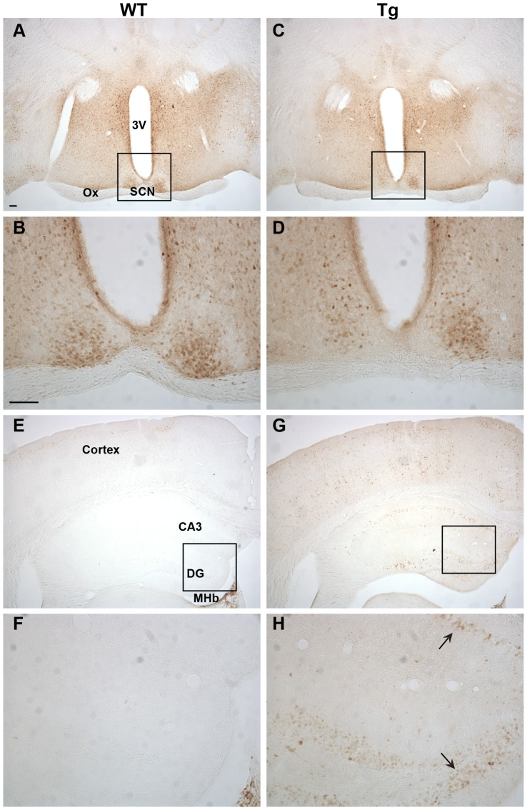 Ngb-IR in the hypothalamus and hippocampus. No difference could be seen in localization or intensity of Ngb-IR in the hypothalamus of WT ( A-B ) and Tg mice ( C-D ). The hippocampus was voided of Ngb-IR in WT mice (E-F). In Tg mice Ngb-IR was seen in cell bodies (black arrow) and processes of most structures of the hippocampus ( G-H ). Abbreviations: 3 rd ventricle (3V); field CA3 of hippocampus (CA3); Dentate gyrus (DG); Medial habenular nucleus (MHb); Optic chiasm (Ox). Scale bar 100 µm.