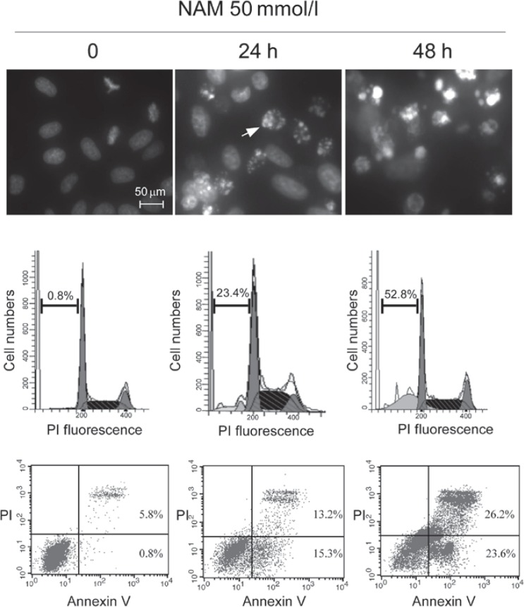 Indications of NAM-induced apoptosis in MCF-7 cells (all occurred in a time-dependent manner). (A) Chromatin condensation and apoptotic bodies (as indicated by white arrow), detected by Hoechst 33342 staining. (B) Increased sub-G 1 cells population, detected by flow cytometry. (C) Increased Annexin V protein, detected by Annexin V + /PI − staining. NAM, nicotinamide; PI, propidium iodide.