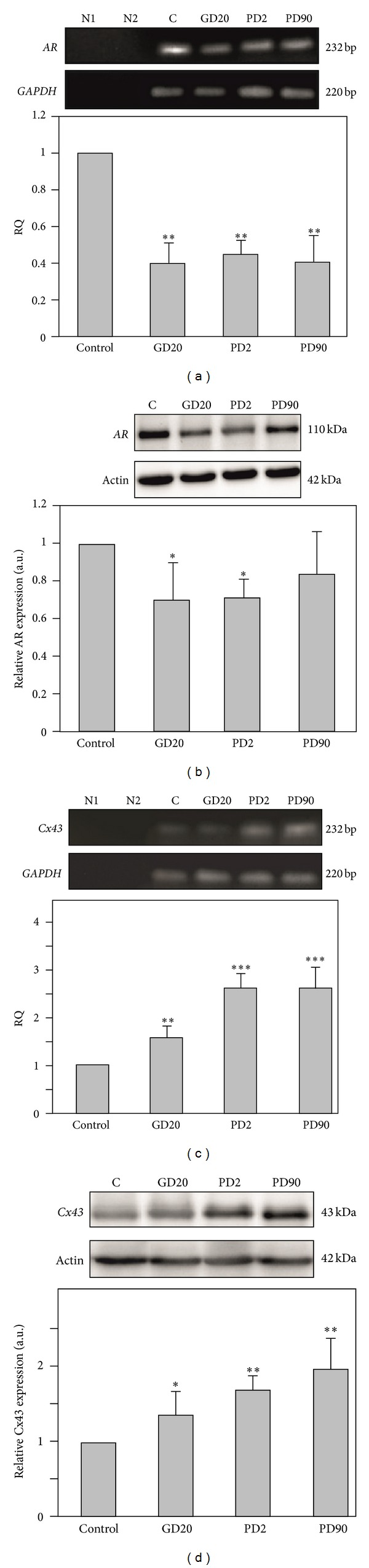 Androgen receptor and Cx43 mRNAs and protein expression in prostates of control and flutamide-exposed boars. ((a), (c)) Androgen receptor and Cx43 mRNAs expression. As an intrinsic control, the GAPDH mRNA level was measured in the samples. Representative gels electrophoresis of qualitative expression of AR (a), Cx43 (c) and GAPDH mRNAs. Line N1—negative control without cDNA template, line N2—negative control without reverse transcribed RNA. Relative expression of mRNA for AR (a) and Cx43 (c) determined using real-time RT-PCR analysis. Relative quantification (RQ) is expressed as means ± SD. Significant differences from control values are denoted as * P