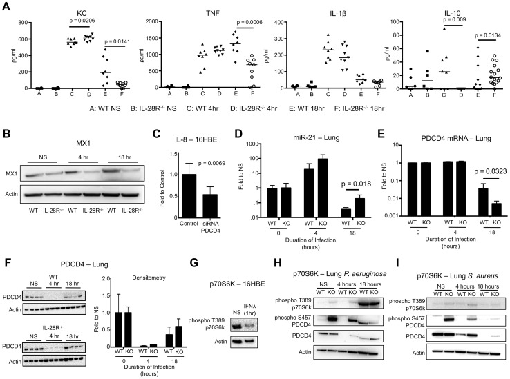 P. aeruginosa induced cytokine, miR-21, and PDCD4 expression in WT and IL-28R −/− mice. (A) ELISA analysis of individual cytokines in BAL of WT and IL-28R −/− mice. (B) Western blot analysis of MX1 expression in lungs of WT and IL-28R −/− mice following 4 and 18 hours of infection with PAK. (C) qRT-PCR analysis of IL-8 in 16HBE cells treated with control or PDCD4 siRNA and infected with PAK, µ ± SD. (D) qRT-PCR analysis of miR-21 in the lungs of WT and IL-28R −/− mice following infection with PAK, µ ± SD. (E) qRT-PCR analysis of PDCD4 mRNA in the lungs of WT and IL-28R −/− mice following infection with PAK, µ ± SD. (F) Western blot analysis of PDCD4 in the lungs of WT and IL-28R −/− mice following infection with PAK, µ ± SD. (G) Western blot analysis of phosphorylation of p70S6K in 16HBE cells treated with recombinant IFNλ. (H) Western blot analysis of phosphorylation of p70S6K and PDCD4 in the lungs of WT and IL-28R −/− mice following infection with PAK. (I) Western blot analysis of phosphorylation of p70S6K and PDCD4 in the lungs of WT and IL-28R −/− mice following infection with USA300. Data are representative of at least 2 independent experiments.