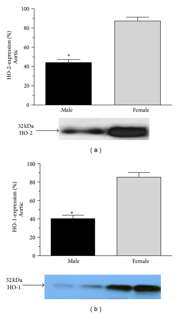Heme-oxygenase expression (HO2 and HO-1 expressed as %) in the aortic of male (the black square) and female (the grey square). Data are expressed as means ± S.E.M. of the results of a minimum of 10 rats per group. Statistical significance: * P