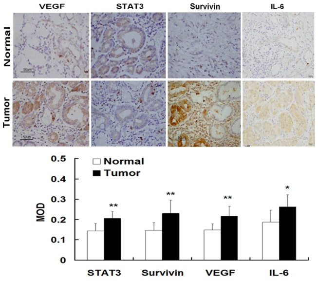 Expression of STAT3 in human gastric cancer tissues. The expression and localization of STAT3, IL-6, VEGF, and survivin in gastric cancer cells were determined using immunohistochemical staining. There was weak or negative expression of STAT3 in adjacent normal mucosa. However, there was strong expression of phosphorylated STAT3 in gastric cancer tissues. The STAT3 staining was mainly localized in the nuclei of tumor epithelial cells, which was indicated by numerous yellowish granules. STAT3 overexpression was associated with with increased expression of IL-6, surviving, and VEGF as well as with increased vessel density (Original magnification of A1-A3 and B1-B3, ×400; A4 and B4, ×200)..