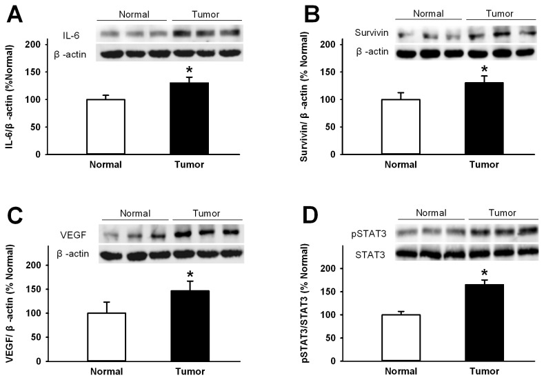 Western blot analysis of protein expression of IL-6, p-STAT3, survivin, STAT3, and VEGF. Protein levels of IL-6, Survivin, p-STAT3, STAT3, and VEGF in normal gastric and tumor tissue were determined using western blotting. Beta-actin was a loading control. Relative protein expression of IL-6 (A), VEGF (B), surviving (C), p-STAT3 (D) was normalized to of the corresponding beta-actin level. Positive immunoreactive bands were quantified densitometrically and expressed as IL-6, Survivin, p-STAT3, STAT3, and VEGF in optical density units, respectively. * P