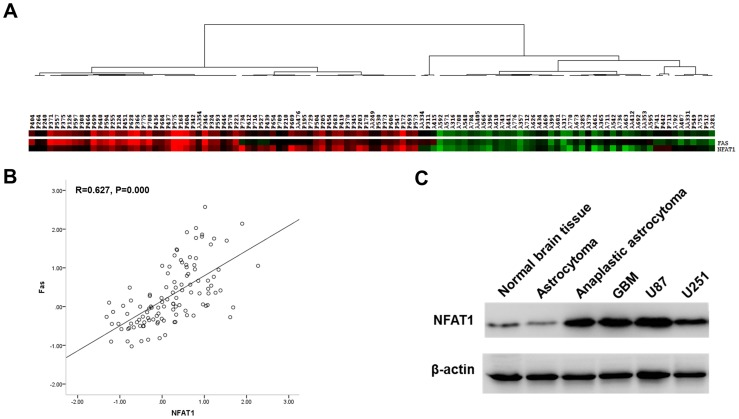 The mRNA expression of NFAT1 and Fas obtained from <t>microarray</t> analysis in 111 clinical samples was analyzed by cluster analysis and Pearson correlation analysis. (A) NFAT1 was overexpressed in high-grade gliomas. (A, B) The expression of NFAT1 significantly correlated with the expression of Fas in gliomas. (C) Western bot showed that NFAT1 was highly expressed in GBM clinical samples as well as in U87 and U251 cells, compared with low-grade glioma and normal brain tissue samples. The graph is a representative of three independent experiments.