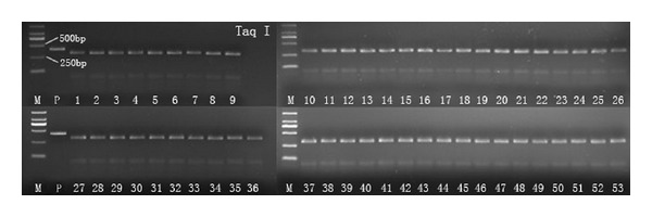 PCR amplicons digested by restriction endonucleases <t>Taq</t> I. Lanes 1–53: random samples from 56 samples; P: PCR amplicon; M: DL-2000 <t>DNA</t> marker.