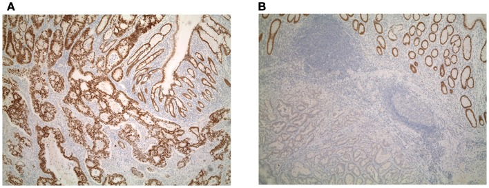 (A) Diffuse and (B) focal expression of Cdx2 in colorectal cancers.