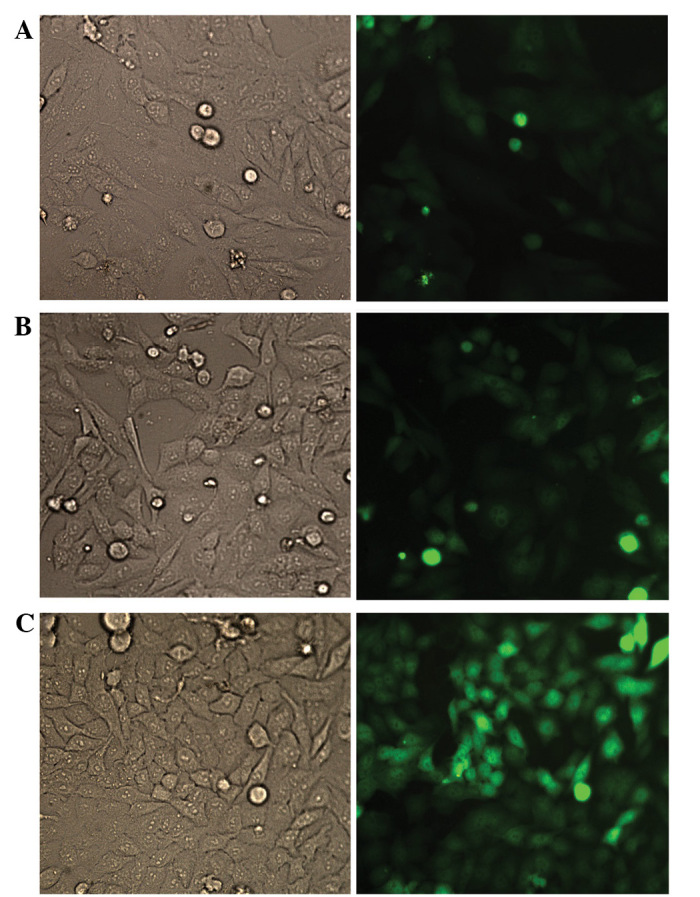 Green fluorescent protein (GFP) visualization of HCT116 cells transduced with Lenti-GFP. HCT116 cells were transduced with Lenti-GFP at different multiplicities of infection (MOI). At 72 h post-transduction, GFP-expressing cells were imaged by fluorescence microscopy (magnification, ×200; left column, bright field; right column, fluorescence vision). (A) MOI, 2. (B) MOI, 5. (C) MOI, 8.