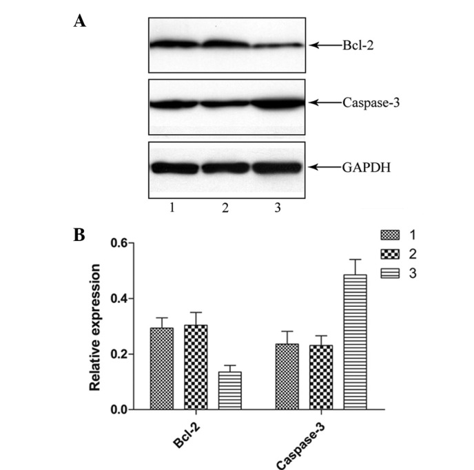 LIGHT transfection reduced caspase-3 and Bcl-2 protein levels in HCT116 cells. (A) Western blot showing caspase-3, Bcl-2 and GAPDH (loading control) staining for untreated HCT116 (lane 1), Lenti-GFP (lane 2) or Lenti-LIGHT-treated HCT116 cells (lane 3). Band signals from caspase-3 and Bcl-2 were normalized to those from GAPDH. (B) Relative expression of caspase-3 and Bcl-2 in the three groups. Lenti-LIGHT-treated HCT116 cells showed higher caspase-3 and lower Bcl-2 protein expression compared with untreated and Lenti-GFP-treated HCT116 cells (P
