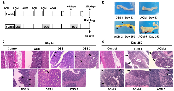 DSS-only and AOM-only models of sporadic colon carcinogenesis. (a) Top, AOM (10 mg/kg) was weekly injected during six weeks. Bottom, fresh 2.5% DSS was given in drinking water during five-day cycles (gray areas) followed by regular drinking water for 16 days. Blood samples were collected at the end of the protocols and also for AOM-treated mice at day 63. (b) Representative images of distal colon macroscopic appearance of DSS-treated (day 63) and AOM-treated mice at day 63 and 250. Tumors are highlighted with black arrows. (c) Representative haematoxylin/eosin staining sections of distal colon morphology of DSS- and AOM-treated mice and control mice. No significant changes were observed for AOM-treated mouse at day 63. DSS-treated mice showed presence of adenomas and different grade of dysplasia (DSS 1, DSS 2 and DSS 3) at day 63, whereas DSS 4 animal showed low grade nonmalignant dysplastic lesions and DSS 5 showed no changes respect to normal mucosa. (d) At day 250, three AOM-treated mice showed infiltrating but non-invasive tumors (AOM 2, AOM 3 and AOM 5), whereas the remaining animals (AOM 1 and AOM 4) showed small flat non-polipoid adenomas with dysplasia. (c, d) Black arrows highlight the observed lesions. Images are shown at 200x magnification.