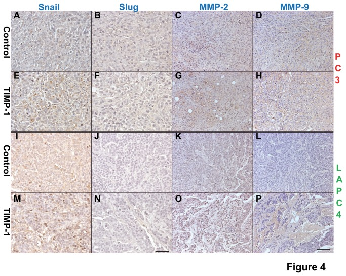 TIMP-1 enhances expression of Snail, MMP-2, and MMP-9 in prostate cancers. Expression levels of several EMT markers, such as Snail (A, E, I, M), Slug (B, F, J, N), MMP-2 (C, G, K, O), and MMP-9 (D, H, L, P) were assessed on the tumor sections derived from PC3/LAPC-4 control cells (A-D and I-L, respectively) and PC3/LAPC-4-TIMP-1 cells (E-H and M-P, respectively). The results show that TIMP-1 enhances expression of Snail, MMP-2, and MMP-9 but not Slug in the prostate cancer tissues. Bar, 50 µm in A, B, E, F, I, J, M, N and 100 µm in C, D, G, H, K, L, O, P.