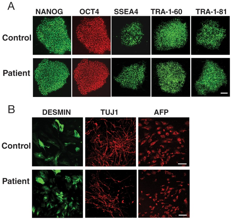 Verification of the pluripotency of the iPSC lines with the TDP-43 A90V mutation. ( A ) Fluorescence microscopy images of the expression of the pluripotency markers NANOG, OCT4, SSEA4, <t>TRA-1-60,</t> and TRA-1-81 in control (37L25) and patient (36L10) iPSC lines. Scale bar: 20 µm. ( B ) All iPSC lines differentiated into cells of the three germ layers, as shown by expression of desmin (mesoderm), TUJ1 (ectoderm), and alpha-fetoprotein (AFP, endoderm). These analyses indicate iPSC lines generated here are indeed pluripotent. Scale bar: 20 µm.