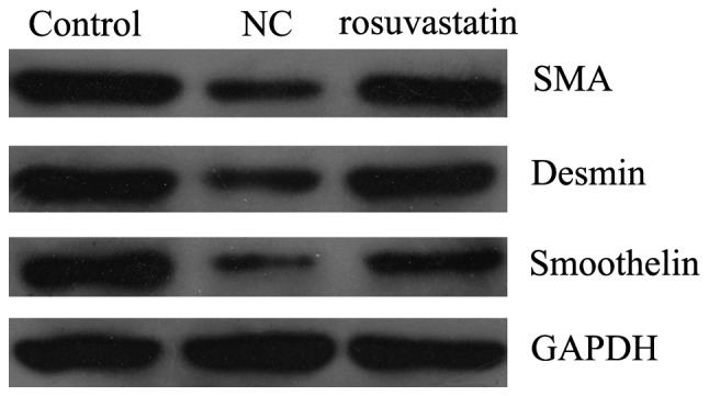 Rosuvastatin inhibited the platelet-derived growth factor-BB (PDGF-BB)-induced phenotype switching of vascular smooth muscle cells (VSMCs). Con, VSMCs were cultured without any treatment; NC, VSMCs were treated only with PDGF-BB (20 ng/ml) for 48 h; rosuvastatin, VSMCs were treated with rosuvastatin (10 μ M) and PDGF-BB (20 ng/ml) for 48 h. The protein expression levels of the smooth muscle markers smooth muscle-α-actin (SMA), smoothelin and desmin were determined. GAPDH, glyceraldehyde 3-phosphate dehydrogenase.