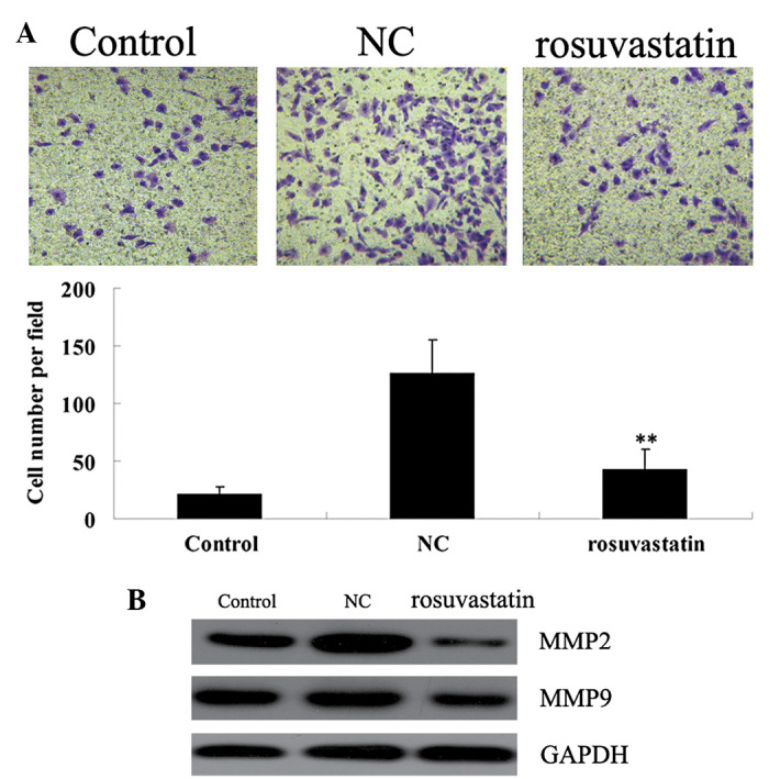 Rosuvastatin suppressed the platelet-derived growth factor-BB (PDGF-BB)-stimulated migration of vascular smooth muscle cells (VSMCs). Con, VSMCs were cultured without any treatment; NC, VSMCs were treated only with PDGF-BB (20 ng/ml) for 48 h; rosuvastatin, VSMCs were treated with rosuvastatin (10 μ M) and PDGF-BB (20 ng/ml) for 48 h. (A) Transwell assay was used to determine the migration of VSMCs. (B) Protein expression of matrix metalloproteinase 2 (MMP2) and 9 (MMP9) was determined by western blot analysis. Glyceraldehyde 3-phosphate dehydrogenase (GAPDH) was used as an internal reference. ** Significantly different from the NC group (P