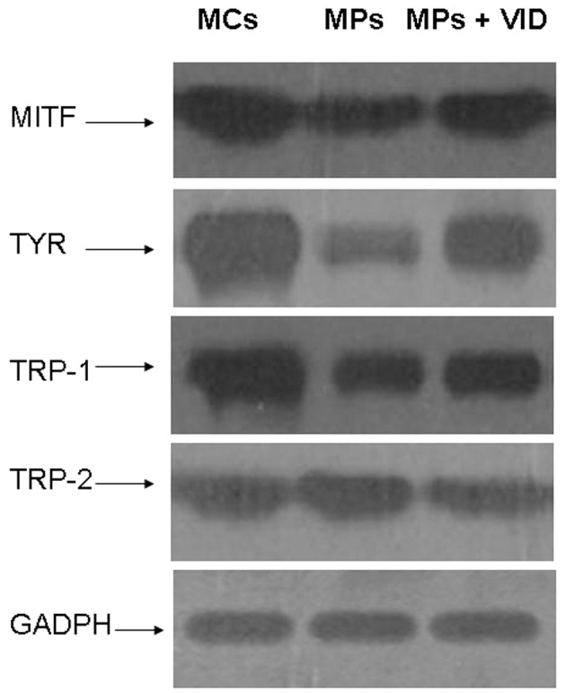 Expression levels of microphthalmia-associated transcription factor (MITF), tyrosinase (TYR) and TYR-related protein-1 (TRP-1) in melanocytes (MCs) are significantly higher than those in melanocyte precursors (MPs), while the level of TRP-2 is similar in these two cell types. Following treatment with 1,25-dihydroxyvitamin D3 (VID), the expression levels of MITF, TYR and TRP-1 are significantly increased in the MPs; however, they remain lower than those in the MCs. The expression of TRP-2 is not changed significantly with VID treatment. GADPH, glyceraldehyde 3-phosphate dehydrogenase.