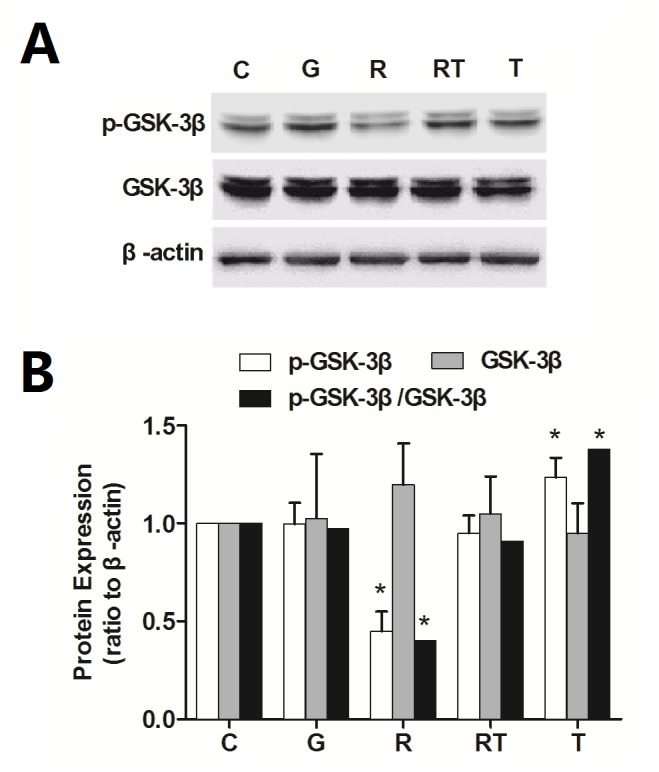 Remifentanil infusion increases the GSK-3β activity in spinal dorsal horn. The total GSK-3β and phosphorylated GSK-3β in spinal dorsal horn were tested by Western blot. β-actin was used as the internal standard (a). The band intensity of C group was assigned a value of 1. Remifentanil resulted in significant decreases of pGSK-3β (ser9) and p-GSK-3β (ser9)/GSK-3β ratio, but had no effect on the total protein level of GSK-3β (b). GSK-3β inhibitor TDZD-8 prevented the changes of pGSK-3β (ser9) and pGSK-3β (ser9)/GSK-3β ratio. n = 5 for each group. Compaired with C group, * P