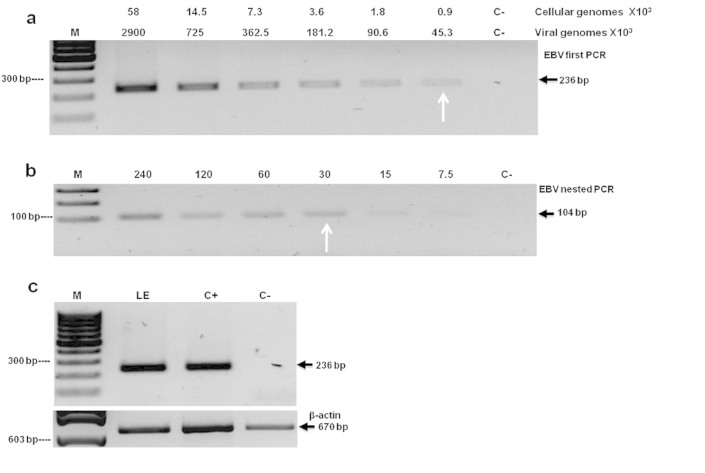 Limit of detection for the EBV PCRs. (a) Limit of detection of first PCR expressed in number of cellular genomes (Raji cells) and EBV genomes. White arrows indicate the lower limits of detection set in 900 cells for the first PCR and, (b) of 30 cells for the nested PCR. (c) Detection of EBV genome in a sample of gastric cancer type lymphoepitheliome (LE). DNA from EBV positive cell line Raji was used as positive control (C+).DNA from the EBV negative cell line Ramos was used as negative control (C−). Molecular marker (M).
