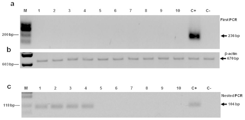 Screening of EBV in breast cancer samples. (a) Ten representative samples of BC analyzed by the first PCR are shown, and (c) by the nested PCR, including the four samples that gave a positive signal in the nested PCR. The β-actin cellular gene is shown as a control for DNA integrity (b). DNA from Raji cell line was used as positive control (C+) and Ramos as negative control (C−). Molecular marker (M).