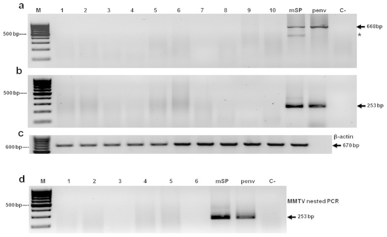 Screening of MMTV in breast cancer samples. First round PCR for ten representative samples of BC with P1–P4 primers (a) and P2–P3 primers (b). (c) PCR from endogenous β-actin gen. (d) Nested PCR of six BC samples. DNA from mouse spleen (mSP) and from plasmid (pENV) were used as positive controls and a PCR reaction mix without DNA was used as negative control (C−). In figure 5a an asterisk denotes an unspecific band.