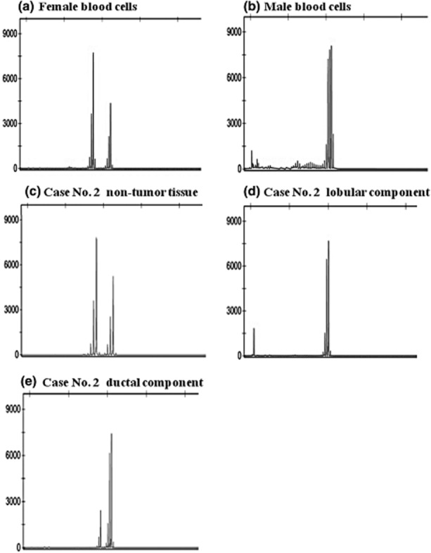 Clonal analysis with X-chromosome inactivation patterns by methylation-specific PCR on the HUMARA (human androgen receptor) gene. The bisulfite-treated DNA was amplified with PCR in use of methylated and unmethylated primer pairs. (a) A random X chromosome inactivation (heterozygous) pattern is shown in control female blood cells. (b) In contrast, a non-random inactivation (homozygous) pattern is shown in male blood cells. (c) The PCR products of case no. 2 are displayed as a random inactivation (heterozygous) pattern in the non-tumor tissue, and as a non-random inactivation (homozygous) pattern in both (d) the lobular carcinoma component and (e) the ductal carcinoma component. (A left-sided minor peak detected in ductal component is quite less dominant than the main peak and accessed as an artifact.)