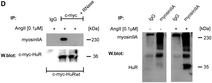AngII promotes a physical interaction of HuR with non-muscle myosin IIA, which structurally depends on phosphorylated S318 within the RRM3. ( A , upper panel). Schematic representation of c-myc-tagged wild-type HuR and different deletion mutants bearing truncations in the specific HuR domains. (A, lower panel). HMC were transfected with the indicated c-myc-HuR coding plasmids. Seventy-two hours after transfection, cells were treated without (−) or with AngII (+) for 2 h. Thereafter, c-myc-tagged HuR proteins were immunoprecipitated with an anti-c-myc antibody (IP: c-myc), or isotype specific control (IP: IgG). HuR-bound myosin IIA was detected by Western blot analysis with an anti-myosin IIA specific antibody. Equal pull-down (input levels) of c-myc was ascertained by reincubating the blot with the same antibody used for IP. ( B ). Blot-overlay assay demonstrating that the hinge region of HuR is not relevant for AngII-induced myosin IIA binding. Pull-down of myosin IIA from vehicle (−) or AngII treated HMC was performed as described in 'Materials and Methods' section . Blots were probed with equal amounts of total cell lysates cells overexpressing c-myc-HuR wild-type or c-myc-HuRΔHinge. Myosin IIA-HuR interaction was assessed by reincubating the blot with an anti-c-myc antibody. Equal pull-down of myosin is ascertained by reincubating the blot with the same antibody used for the myosin IIA co-IP. ( C ). HMC were transfected with the indicated c-myc-point mutated HuR and IPs were performed similar as described for (A). Equal pull-down (input levels) of c-myc was ascertained by reincubating the blot with the same antibody used for IP. ( D , left panel). HuR binding to myosin IIA is sensitive toward RNase treatment. HMC overexpressing c-myc-HuRwild-type or c-myc-HuRΔHinge were treated for 2 h with AngII (0.1 µM) before total cell lysates from transfectants were immunoprecipitated with an anti-c-myc antibody or with control IgG. Before the IP reaction, the cell homogenates were subjected to RNase treatment and subsequently immunoblotted with an anti-myosin IIA specific antibody. Equal pull-down of c-myc is ascertained by reincubating the blot with anti-c-myc antiserum. (right panel). To test for AngII-dependent association of myosinIIA with endogenous HuR, 200 µg of total cell extracts from unstimulated (−) or AngII-stimulated (+) HMC were subjected to (IP) as described in 'Materials and Methods' section. The data shown are from a single experiment representative of two repeats with similar results.
