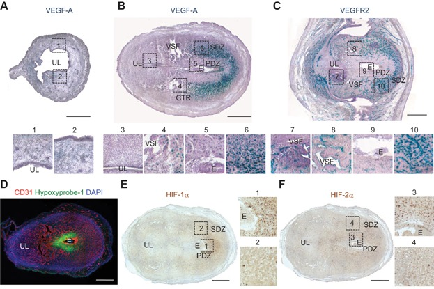 VEGF-A is highly expressed in the DSCs of pregnant uterus, but is not spatially matched with hypoxia and HIF-1α and HIF-2α expressions A–C. Images showing expressions of VEGF-A and VEGFR2 in the uteri of VEGF +/LacZ and VEGFR2 +/LacZ mice at ENP (A) and 6.5 dpc (B and C). Each numbered region (square-dotted line) is magnified and arrayed in below. The tissues were counterstained with hematoxylin (violet) following X-gal staining. UL, uterine lumen; E, embryo; PDZ, primary decidual zone; SDZ, secondary decidual zone; CTR, the central region; VSF, vascular sinus folding. Scale bars, 500 µm. D. Image showing Hypoxyprobe-1 + hypoxic region and CD31 + BVs in uterus at 6.5 dpc. Scale bar, 500 µm. E, F Expressions of HIF-1α and HIF-2α in the uteri at 6.5 dpc. Each numbered region (square-dotted line) is magnified and arrayed in right side. Scale bars, 500 µm.