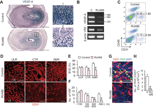 Pharmacologic blockade of PR with RU486 negatively regulates VEGF-A expression in DSCs for decidual angiogenesis and EEVSF The pregnant mice were treated with control buffer (Control, C) and RU486 (8 mg/kg) at 5.5 dpc, and the uteri were harvested at 6.5 dpc and analysed. A. Comparison of VEGF-A expression in the uteri of VEGF +/LacZ mice. Each numbered region (square-dotted line) is magnified in right side. Scale bars, 500 µm. B. Semi-quantitative RT-PCR showing mRNA expressions of VEGF-A and VEGFR2 (VR2). Each line indicates gene transcript of VEGF-A 120 , VEGF-A 164 and VEGF-A 188 . C. FACS analysis showing CD31 + /CD45 − EC populations from the endometrium. Each group, n = 4. D. Images comparing CD31 + BVs in the ULR, CTR and AMR. Scale bars, 100 µm. E, F Comparisons of CD31 + BVD (%) in the ULR, CTR and AMR, and numbers of different sized VSFs in the CTR. Each group, n = 4. * p