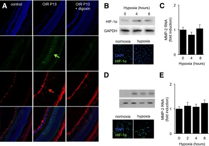Stabilization of HIF-1α in hypoxic Müller cells does not lead to MMP-2 expression. A : Representative immunofluorescence analysis of HIF-1α in the retina of P13 OIR eyes compared with control P13 eyes. B : Western blot and immunofluorescence for HIF-1α in primary murine Müller cells exposed to hypoxia. GAPDH was used as a loading control. C : Mmp-2 mRNA levels from primary murine Müller cells exposed to hypoxia, normalized to cyclophilin B mRNA, and reported as fold induction compared with cells exposed to 20% O 2 . D and E : Similar studies were performed using MIO-M1 cells. All experiments were performed in duplicate are representative of at least three independent experiments. n = 3 animals in each group. The differences in the fold induction in C and E were not statistically significant ( P > 0.05).