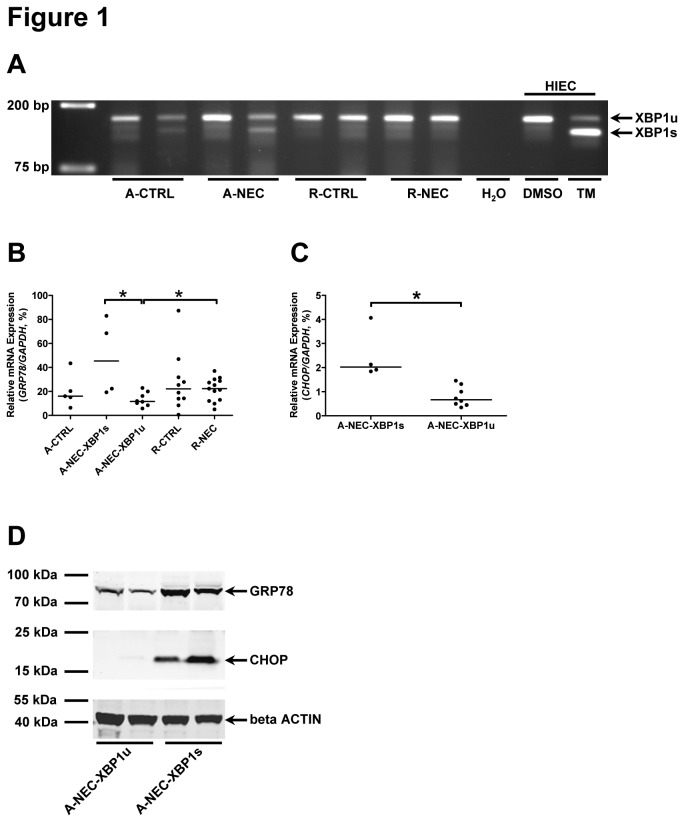 Occurrence of ER stress and the UPR in a subset of A-NEC patients. (A) Splicing of XBP1 mRNA was checked in all patients, and representative PCR products of XBP1u and XBP1s are shown using DNA electrophoresis. Dimethyl sulfoxide (DMSO)-treated HIEC cells were used as negative control for XBP1s , and TM-treated HIEC cells were used as positive control for XBP1s . Mucosal mRNA expression levels of GRP78 (B) and CHOP (C) in the ileum of patients were quantified using qPCR and normalized to GAPDH mRNA levels. Asterisks indicate statistical significant differences between indicated groups. (D) The Western blot result shows the representative protein expression of GRP78 and CHOP in A-NEC-XBP1u and A-NEC-XBP1s patients, and beta ACTIN was used as loading control.