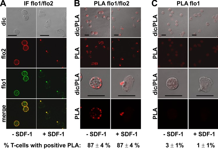 Interaction of flotillin-1 and -2 in human T-cells studied with PLA. (A, B) T-cells were preincubated for 30 min at 37°C, followed by a further incubation for 15 min without or with 40 ng/ml SDF-1, fixation with TCA and staining for endogenous flotillin-1 (flo1) (rabbit polyclonal antibody) and flotillin-2 (flo2) (monoclonal murine antibody), followed by (A) fluorescently labeled anti-murine and anti-rabbit IgG second antibodies (IF) or (B) PLA probes minus and plus, ligation and amplification. (C) For negative controls, T-cells were treated as described for (B) except that the anti-flotillin-2 antibody was omitted. For (B) and (C), the top panels are overviews at lower magnification whereas in the lower panels single cells are shown at higher magnification. The pictures are representative of 3 experiments. The percentage of cells with one or more red fluorescent dots per cell was determined for 100 cells per sample and experiment (mean ± sem of 3 experiments). Note that the majority of the cells incubated with both flo1 and flo2 antibodies exhibited several dots per cell, whereas for controls only incubated with flo1 antibody, maximally 1 dot per cell occurred. Scale bars, 10 µm.