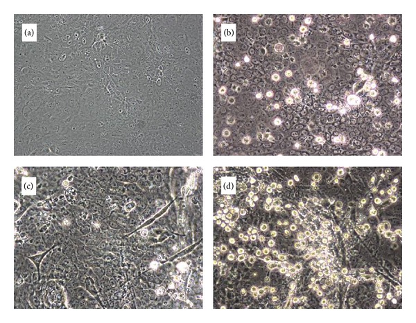 Early formation of influenza virus-specific CPE in cells inoculated with material collected by a <t>PCIS</t> at air sampling site 3. (a) Noninfected ATCC <t>MDCK</t> cells (negative control), 3 days postseed. (b) ATCC MDCK cells inoculated with material scraped off the PCIS after-filter. (c) Noninfected MDCK-SIAT2,6-UF cells, (negative control), 3 days postseed. (d) MDCK-SIAT2,6-UF cells inoculated with material scraped off the PCIS after-filter.