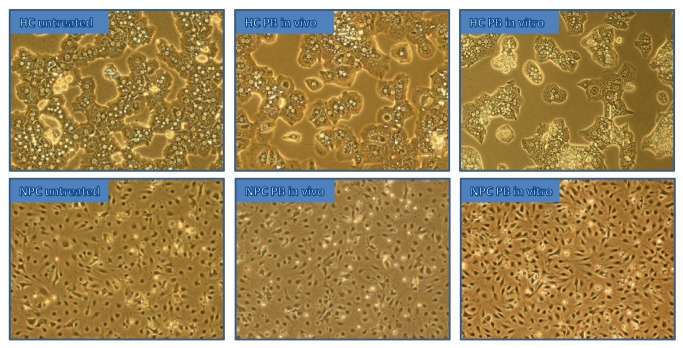 Microscope images of <t>HCs</t> and <t>NPCs</t> in culture. These pictures depict representative areas of untreated, PB in vitro as well as in vivo treated HCs and NPCs in culture extracted from microscopic images of equal magnification.