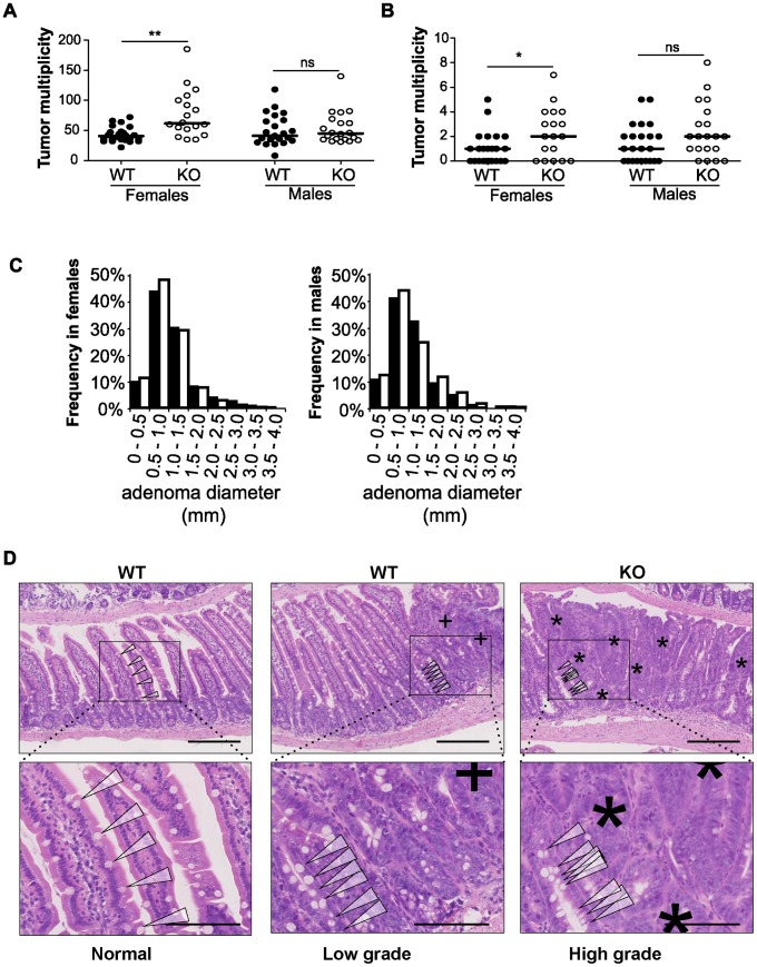 """Disruption of miR-10a leads to enhanced intestinal tumorigenesis in Apc Min mice. Tumor multiplicity in the small (A) and large intestines (B) of female and male miR-10a +/+ ; Apc Min (WT; n = 22 and n = 19 for each sex) and miR-10a −/− ; Apc Min (KO; n = 15 and n = 16 for each sex) mice; each dot represents data for one mouse. Mean adenoma multiplicities per mouse for each group were: WT = 41.95 and KO = 79.33 for female mice and WT = 50.37 and KO = 55.19 for male mice in the small intestine and WT = 0.82 and KO = 2.40 for female mice and WT = 1.47 and KO = 2.44 for male mice in the large intestine. * p = 0.014, ** p = 0.0042 (two-tailed t -test) (C) Size distribution of polyps in the small intestine of female and male miR-10a +/+ ; Apc Min (WT; filled bars) and miR-10a −/− ; Apc Min (KO; empty bars) mice. Mean tumor diameters were 1.01 and 1.04 mm for males WT and KO respectively and 1.03 and 0.94 for females WT and KO respectively ( p = 0.782 and p = 0.4113, Wilcoxon rank sum test). (D) Left panel shows normal appearing small intestine with characteristic villi and well-ordered distribution of goblet cells together with basal location of epithelial nuclei. Middle panel is a typical example of a low-grade dysplasia in miR-10a +/+ ; Apc Min (WT) mice with accumulation of irregular goblet cells pattern (arrowheads) and some loss of nuclear polarity (indicated by """"+""""). Right panel shows a typical miR-10a −/− ; Apc Min (KO) high-grade dysplasia with a large area of loss of goblet cells, widespread loss of nuclear polarity, nuclear pleomorphism, and almost complete loss of villus organization (indicated by """"*""""). Note the transition from lower-grade dysplasia area with highly irregular goblet cell distribution (arrowheads). Scalebar = 100 µM. Whole intestines were paraffin-embedded as """"Swiss rolls"""", sectioned and stained with hematoxylin and eosin. All animals were in a B6 background and between 110 and 160 days of age."""