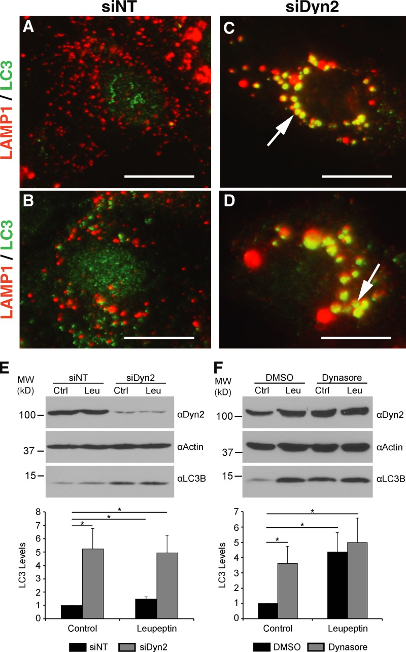Dyn2 inhibition leads to enlarged autolysosomal structures and prevents the autophagy of lipid droplets. Hep3B cells treated with either a nontargeting control siRNA (A and B, siNT) or an siRNA targeting human Dyn2 (C and D, siDyn2) were fixed and co-stained with antibodies specific for LAMP1 (red) and LC3 (green). After Dyn2 knockdown, a juxtanuclear aggregation and enlargement of the LAMP1-positive compartment is observed (C and D, arrows). Increased labeling of LC3 is also detectable after knockdown of Dyn2. (E) Western blotting of Hep3B lysates after a 3-d treatment with either the control or Dyn2-targeted siRNA and further treatment with or without 50 µM leupeptin. Densitometry-based analysis of six independent experiments is shown at the bottom of the figure. (F) Western blotting of Hep3B lysates after treatment for 2 h with DMSO or 80 µM Dynasore, in the presence or absence of 50 µM leupeptin. Quantitation of LC3-II levels relative to control are shown below the blots. The data are represented as mean ± SE; *, P ≤ 0.05.