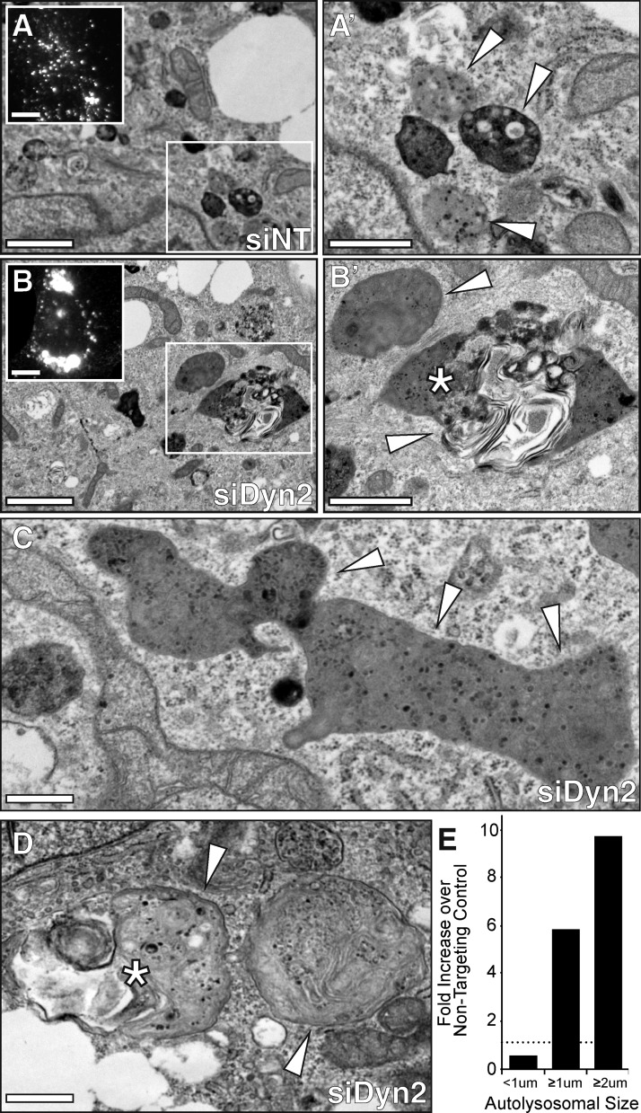 Dyn2 knockdown results in the formation of enlarged autophagic structures. (A–D) Transmission electron micrographs (TEMs) of oleate-loaded Hep3B hepatocytes treated with nontargeting control (siNT) or Dyn2 (siDyn2) siRNA for 72 h. Bars: (A and B) 2 µm; (A′ and B′) 1 µm; (C and D) 0.5 µm. Insets in A and B show fluorescent micrographs of LAMP1-stained cells (bars, 10 µM). Control cells (A) contain an abundance of small (