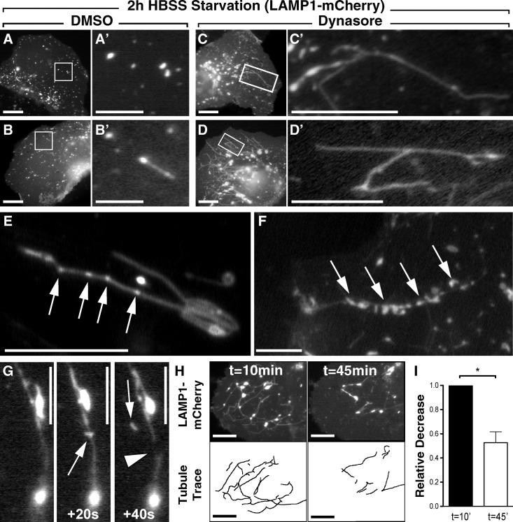 Acute inhibition of Dyn2 reversibly disrupts autophagic lysosomal reformation (ALR) and lysosomal tubule scission. (A–D) Still frames from time-lapse movies of Hep3B cells expressing LAMP1-mCherry. Cells were starved for 2 h in HBSS and subsequently treated for 30 min with either DMSO (A and B) or 40 µM Dynasore (C and D), which induced extensive tubulation of LAMP1-positive compartments. Bars (A–D): 20 µM; (A′–B′) 2 µM; (C′–D′) 10 µM. (E–G) To demonstrate the reversibility of this tubulation, Dynasore-treated cells were washed extensively with drug-free media containing 10% FBS and monitored by time-lapse microscopy for 45 min. Frequently, after drug washout, LAMP1-positive tubules exhibited noticeable varicosities (E and F, arrows; bars, 10 µM) along their length. These sites are suggestive of areas of scission and resumed budding of nascent protolysosomes from the reformation tubules (G; bars, 10 µM). (H) Tubules from cells undergoing drug washout were quantified by tracing their lengths at the beginning and end of these movies. Still frames from a representative movie show tubule content at t = 10 and 45 min after drug washout. Bars, 20 µM. (I) Analysis of five independent movies showed an average decrease in total tubulation of ∼50% after drug washout. Data represent the average relative change in total tubule length between the first and last frames of the time-lapse movies. Error bars represent SE; *, P