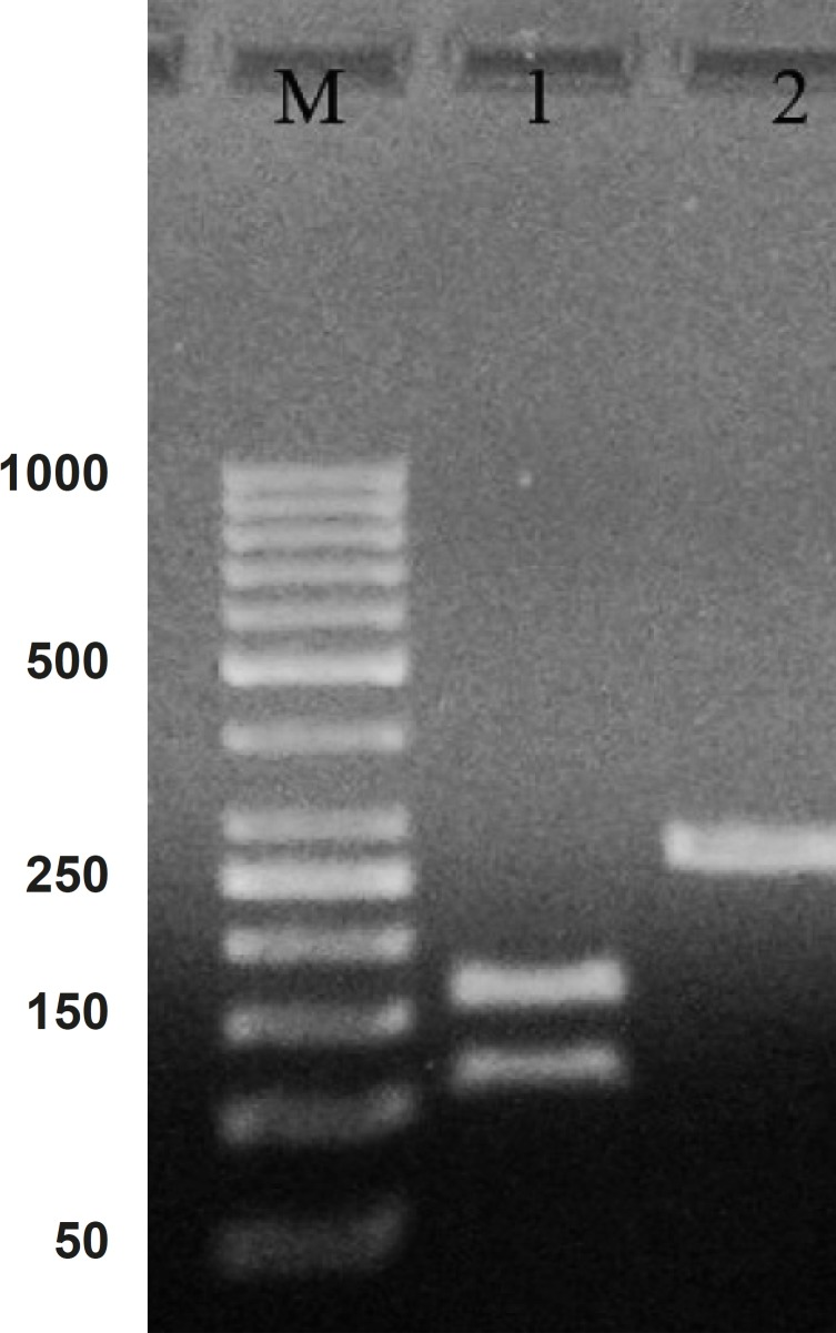 PCR product of hepcidin cDNA in 1% agarose gel electrophoresis. Lane M is the molecular marker (GeneRuler™ 50 bp DNA Ladder). Lane 1 is the effect of ALU-1 restriction enzyme on PCR product confirming it as a hepcidin cDNA. Lane 2 is PCR product with 260 bp weight expected for hepcidin cDNA