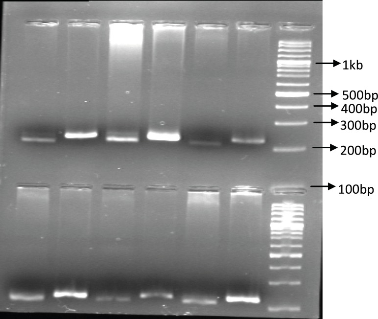 The PCR-RFPL analysis of UGT1A9 T-275A SNP in patients. The DNA from patients was subjected to PCR followed by RFPL using XbaI digest. The reactions were resolved on 2% agarose gel electrophoresis. Lanes 1-3 and 4-6 are from two different patient hetrozygote for T-275A SNP. Lane 1, 4 are PCR products and lane 2, 3 and 5, 6 are XbaI digest of corresponding samples. The reactions were compared to 100 bp DNA ladder. (PCR-RFLP :poly chain reaction-restricted fragment length polymorphism, UGT: Uridine diphosphate glucuronosyl transferase, SNP: Single nucleotide polymorphism).
