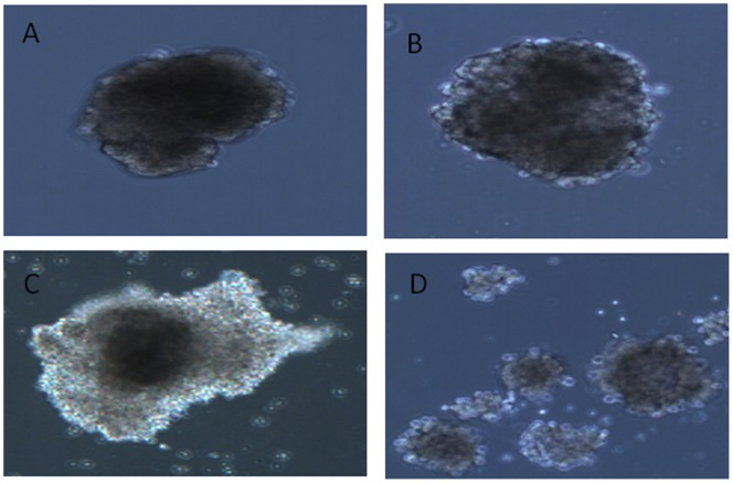 Virus-induced cytopathic effect in primary human pancreatic islets cells. A. Uninfected islet. B. Islets infected with the E4 isolate 5 days post infection. C. Islets infected with E16 isolates 3 days post infection. D. Islets infected with E30 isolates 3 days post infection. The figure is representative of seven islet donors.