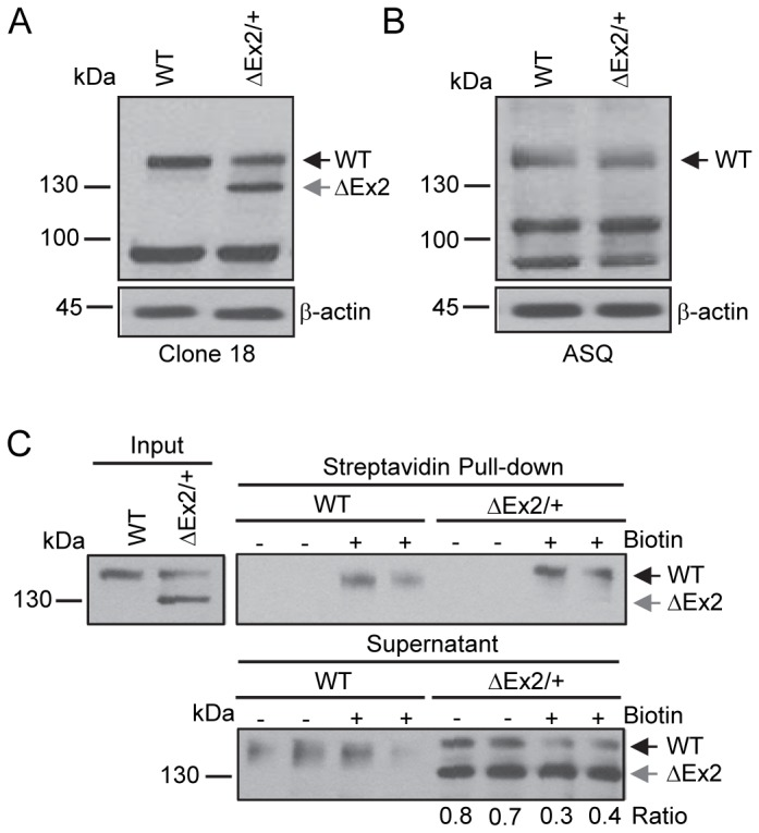Characterization of the endogenously expressed Bmpr2 mutant product in pulmonary endothelial cells from Bmpr2 ΔEx2/+ mice. Studies were performed using conditionally immortalized PECs (ciPECs) isolated from wild type control and Bmpr2 ΔEx2/+ mice and replicated at least three times. A, Western blot using the Clone 18 anti-BMPR2 antibody in wild type (WT) and Bmpr2 ΔEx2/+ (ΔEx2/+) ciPEC lysates. Both cell lines expressed a 150 kDa wild type Bmpr2 product (WT). Bmpr2 ΔEx2/+ ciPECs also expressed a 130 kDa product (ΔEx2). B, Western blot using ASQ anti-BMPR2 antibody. Wild type control and Bmpr2 ΔEx2/+ ciPECs expressed 150 kDa WT Bmpr2, but the 130 kDa product was not detected. C, Cell surface expression of Bmpr2 in ciPECs. ciPECs were labeled with membrane impermeable biotin and cell surface expression of Bmpr2 detected in streptavidin pull-down of cell lysates. Anti-BMPR2 Clone 18 antibody detected the 150 kDa wild type Bmpr2 in control and Bmpr2 ΔEx2/+ ciPECs after streptavidin pull-down but not the 130kDa Bmpr2ΔEx2 mutant product. Lower panel, Western blot for Bmpr2 in the supernatant remaining after depletion of cell surface proteins by streptavidin pull-down. The ratios of 150 kDa WT Bmpr2 and the 130 kDa Bmpr2ΔEx2 mutant band intensities in Bmpr2 ΔEx2/+ ciPECs supernatants after depletion of cell surface proteins are indicated below the lower panel.