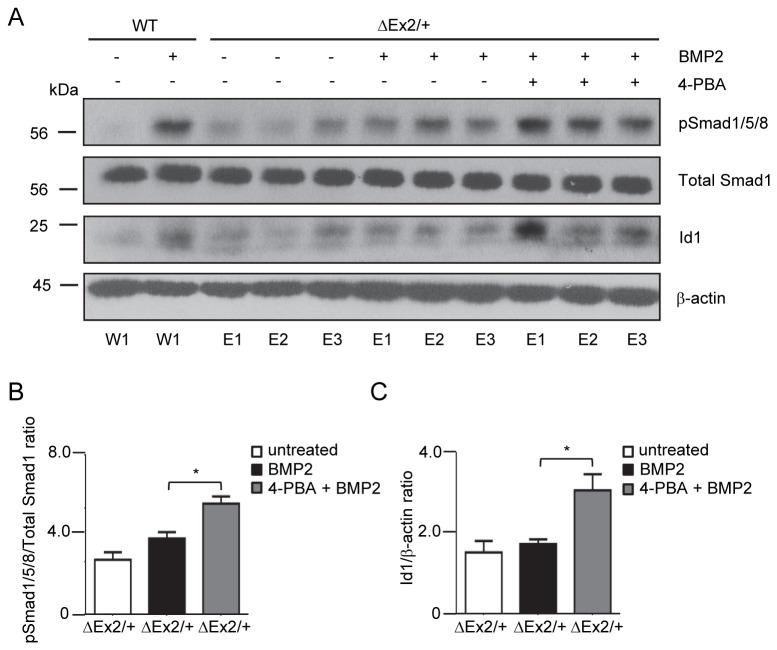 Treatment with 4-PBA rescues signaling defects in Bmpr2 ΔEx2/+ pulmonary endothelial cells. Individual primary PECs isolates obtained from 1 wild type control and 3 Bmpr2 ΔEx2/+ mice were treated with 1mM 4-PBA for 48 hours followed by BMP2 treatment for 4 hours, as indicated. A, Western blot for phospho-Smad1/5/8 and Id1 shows 4-PBA restores phospho-Smad1/5/8 and Id1 expression in Bmpr2 ΔEx2/+ PECs to expression levels similar to BMP-stimulated WT PECs. B, Densitometry for phospho-Smad1/5/8 and C, Id1 expressed as ratio to total Smad1 and β-actin respectively. Results expressed as mean +/- SEM of three individual PEC isolates per group. One-way ANOVA with post hoc Bonferroni correction, p