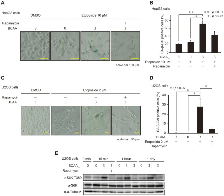 BCAAs enhance the execution of premature senescence induced by DNA damage-inducing drugs. (A) HepG2 cells cultured in BCAA medium were treated with or without 10 µM etoposide and 100 nM rapamycin as indicated for 48 hours, and observed with microscope after SA-β-Gal staining assay. (B) HepG2 cells were cultured in BCAA as described in A. For the assay of SA-β-Gal activity, cells stained with blue color were counted as described in Materials and Methods . The data (mean ± S.D.) were obtained from at least three independent experiments. Significant test results ( P values) are shown. (C) U2OS cells cultured in BCAA medium were treated with or without 2 µM etoposide and 100 nM rapamycin as indicated for 7 days, and observed with microscope after SA-β-Gal staining assay. (D) U2OS cells were cultured in BCAA medium as described in C. The assay of SA-β-Gal activity was carried out as described in B. (E) U2OS cells cultured in BCAA medium were treated with or without 100 nM rapamycin as indicated for 24 hours and cells were harvested at each time point. Cell lysates were subjected to SDS-PAGE and immunoblotted with the antibodies as indicated.