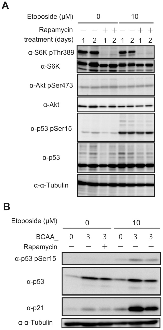 BCAAs upregulate p21 protein level mediated through the mTORC1 pathway. (A) HepG2 cells cultured in RPMI medium were treated with or without 10 µM etoposide and 100 nM rapamycin as indicated for 1 or 2 days. Cell lysates were subjected to SDS-PAGE and immunoblotted with the antibodies as indicated. (B) HepG2 cells cultured in BCAA medium were treated with or without 10 µM etoposide and 100 nM rapamycin as indicated for 2 days. Cell lysates were subjected to SDS-PAGE and immunoblotted with the antibodies as indicated.