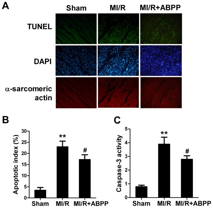 Achyranthes bidentata polypeptides (ABPP) preconditioning reduced myocardial apoptotic index and caspase-3 activity in rats subjected to myocardial ischemia/reperfusion. ( A ) Top: representative photomicrographs of in situ detection of apoptotic myocytes by terminal deoxynucleotidyl nickend labeling (TUNEL) staining in ischemic heart tissue from rats subjected to 30 min of ischemia and 4 h of reperfusion. Green fluorescence shows TUNEL-positive nuclei; Blue fluorescence shows nuclei of total cardiomyocytes. Bottom: percentage of TUNEL-positive nuclei in heart tissue sections; ( B ) Myocardial caspase-3 activity. MI/R, myocardial ischaemia/reperfusion (30 min/4 h); Sham, sham-operated; ABPP, Achyranthes bidentata polypeptides. Values presented are means ± SEM. n = 8/group. ** p