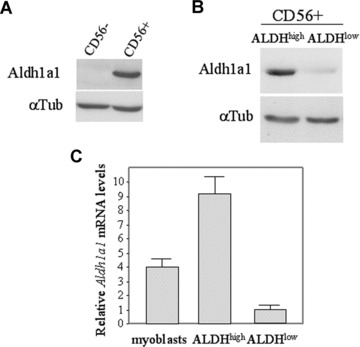 Aldh1a1 expression is associated with ALDH activity. (A) Proteins extracts from CD56 + myoblasts and CD56 − cells were analysed for Aldh1a1 expression. (B) Fractionated ALDH high and ALDH low myoblasts (clone hm1 myoblasts) were analysed for Aldh1a1 expression. Loading control was assessed with a tubulin (αTub) expression. (C) Quantitative reverse transcriptase-polymerase chain reaction analysis (RT-PCR) of relative levels of Aldh1a1 mRNA in human myoblasts (myoblasts) and in fractionated ALDH high and ALDH low human myoblasts (clone hm1 myoblasts). Expression was normalized against 28s rRNA and the lowest level of Aldh1a1 expression was set at 1. Means were given ±S.E.M.; n = 3.