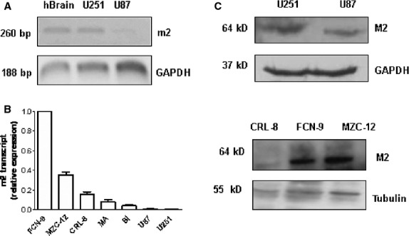 M2 expression in glioma cells. ( A ) RT-PCR analysis of m2 transcript espression in two glioblastoma cell lines (U251 and U87). RNA from human brain was used as positive control, the GAPDH was used as housekeeping gene. ( B ) Levels of expression of m2 transcript by real time PCR in five primary cell cultures obtained from biopsies and in glioma cell lines U87 and U251. The levels of the transcript were normalized with the housekeeping gene (18s) and compared to the reference sample FCN-9. ( C ) Expression of M2 protein by Western blot analysis in both cell lines (U251 and U87) and in three primary cell cultures (CRL-8; FCN-9; MZC-12). GAPDH and tubulin were used to normalize the intensity of the bands.