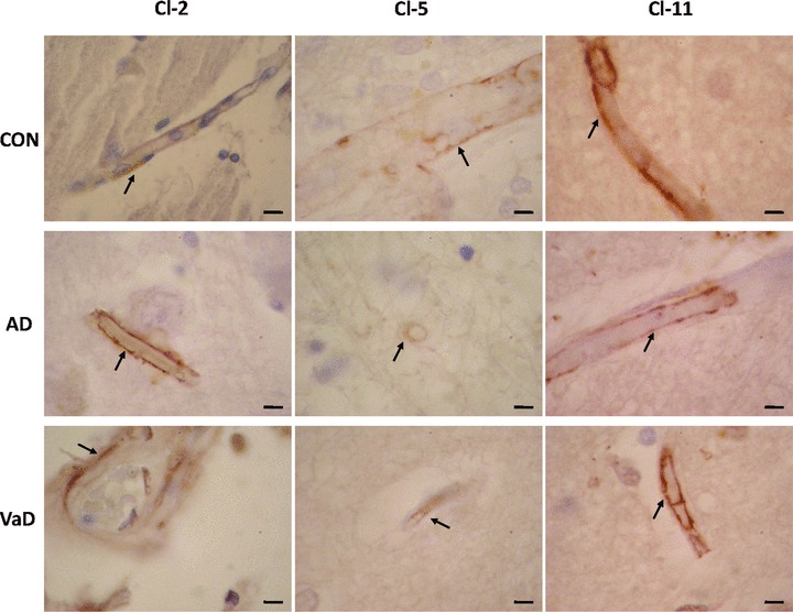Expression of Cl-2, Cl-5 and Cl-11 in brain microvessels in control (CON), AD and VaD brains, in the frontal cortex, Brodmann area 46/9. Cl-expressing cells are brownish, as a result of the immunohistochemical staining method with anti-Cl sera detected with avidin–biotin-peroxidase complex kit and DAB substrate. Endothelial cells expressing Cl-2, Cl-5 or Cl-11 are indicated by arrows. Bars: 5 μm.