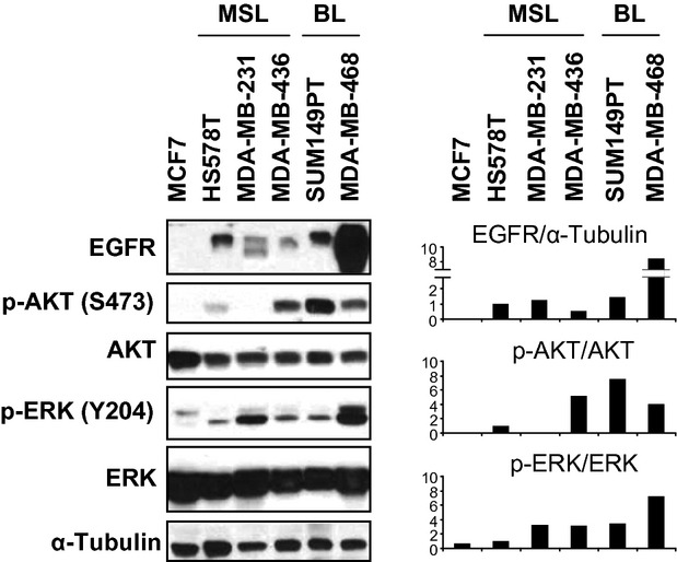 EGFR is overexpressed in TNBC cell lines. Cells were harvested the day after subculture and cell lysates were analysed by western blot with the indicated antibodies. α-tubulin was used as a loading control. MSL: mesenchymal stem-like; BL: basal-like.