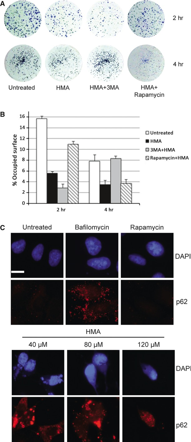 Role of autophagy in HMA response. ( A ) ARPE-19 cells were treated with HMA in the absence or presence of 1 μM rapamycin or 5 mM 3-MA. After 2 or 4 hrs of treatment, cells were trypsinized and counted. A total of 1000 cells were seeded into 6-well plates. Seven days after seeding, cells were stained with cresyl violet. Controls using rapamycin or 3-MA alone have show no difference with the control (not shown) ( B ) Using image analysis, the surface covered by the cells was measured and plotted. For 2 hrs of treatment all means were significantly different ( P