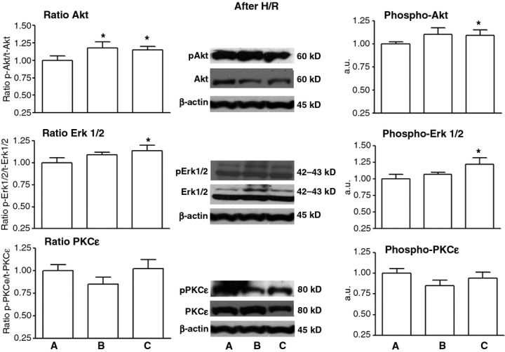 Western blot analysis of Akt (top panels), ERK1/2 (middle panels), and PKCε (bottom panels) after hypoxia/reoxygenation (H/R). ( A ) MSC control group ( B ) MSC treated with FN-PAM-VEGF, and ( C ) MSC treated with free-VEGF-A. The panels on the left are normalized phospho/total kinase ratios. The central panels are representative bands of total and phospho-kinases. The panels on the right show the normalized mean values of phospho-enzyme only. We normalized the expression of total kinases and phospho-kinases for each condition to its matched loading control β actin and then where normalized with respect to the mean values of MSCs subjected to H/R. It can be appreciated an increased Akt phospho/total ratio in both FN-PAM-VEGF and VEGF-A groups, an increased ERK1/2 phospho/total ratio in VEGF-A only, and an unchanged phospho/total ratio of PKCε in both FN-PAM-VEGF and VEGF-A groups. * P